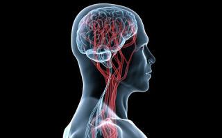 Что такое атеросклероз магистральных артерий головы?