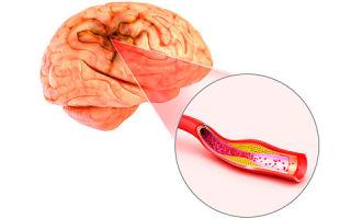Атеросклероз головного мозга — полное описание заболевания. Методы лечения и диагностики