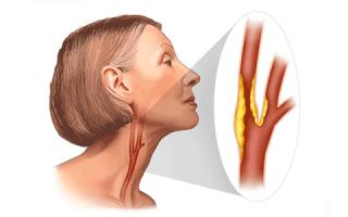Что такое холестериновые бляшки в сосудах шеи и как это лечить?