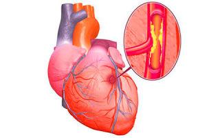 Атеросклероз сосудов сердца — что это за болезнь и как ее лечить?