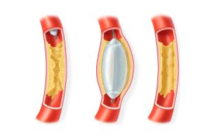 Баллонная ангиопластика — операция по восстановлению проходимости сосудов