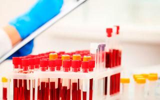 Что значит, если одновременно повышен билирубин и холестерин?