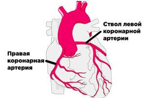Коронарный атеросклероз — что это такое?