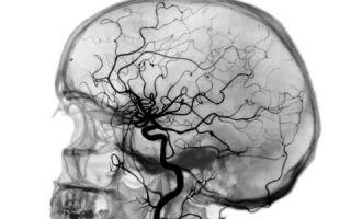 Церебральная ангиография — методом диагностики сосудов головного мозга