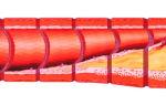 Стадии развития атеросклероза сосудов