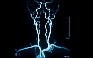 Ангиография шеи — золотой стандарт диагностики шейных сосудов