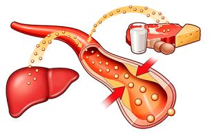 Обмен (метаболизм) холестерина в организме