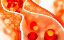 Пониженный уровень холестерина в крови. Что это означает? Какие могут быть последствия?