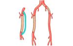 Что такое шунтирование сосудов нижних конечностей?