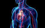 Симптомы, причины и методы лечения генерализированного атеросклероза