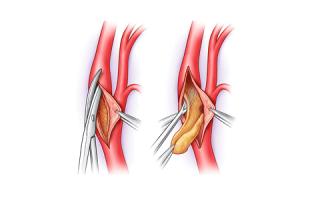 Эндартерэктомия — операция по удалению холестериновых бляшек при атеросклерозе
