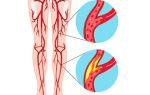 Атеросклероз нижних конечностей — полное описание заболевания и методов лечения
