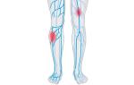 Ангиография вен и артерий нижних конечностей — метод  диагностики заболеваний сосудов ног