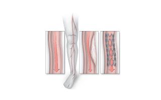 Что такое стентирование сосудов нижних конечностей?