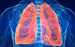 Что такое атеросклероз легких? Симптомы, диагностика и лечение заболевания