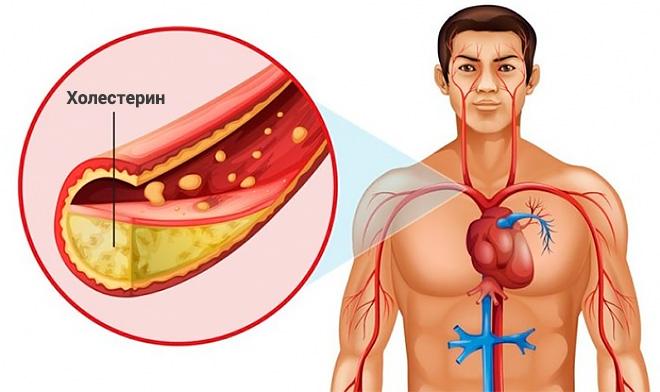 Блокирование артерий холестерином