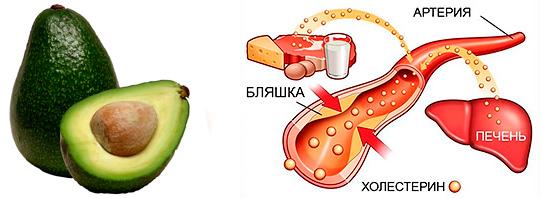 Влияние авокадо на холестерин