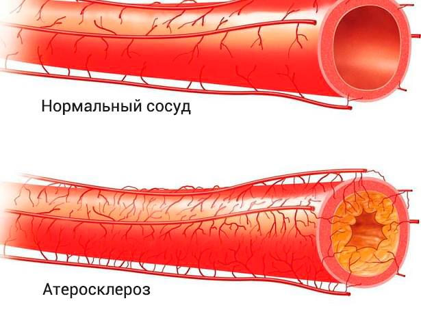Поражение сосуда атеросклерозом