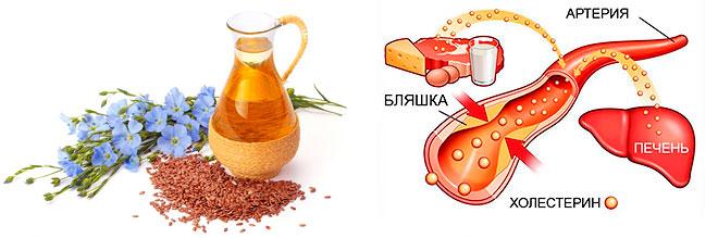 Масло льна и холестерол