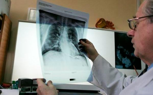Диагностика атеросклероза легких