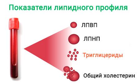 Липидный обмен и триглицериды