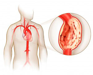 Аорта сердца