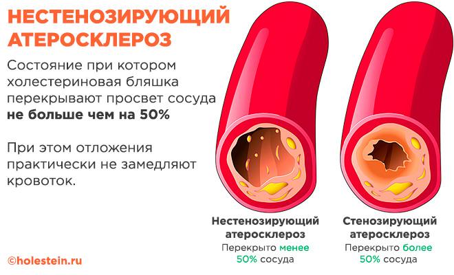 Нестенозирующий и стенозирующий атеросклероз - в чем разница?