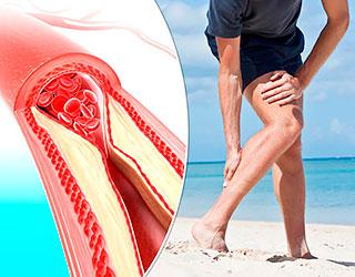 Лечение сосудов ног