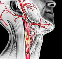 Артерии шеи