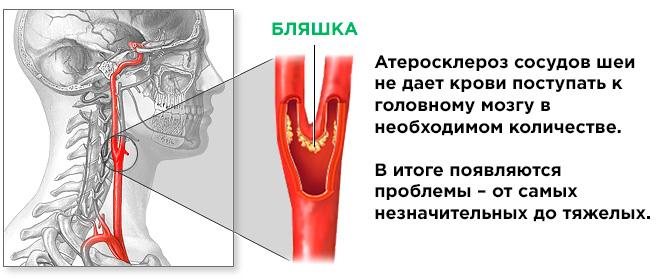 Атеросклероз шейных сосудов