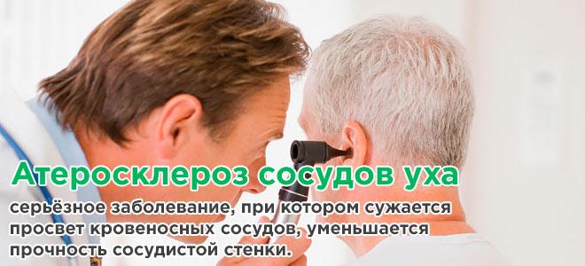 Атеросклероз сосудов уха