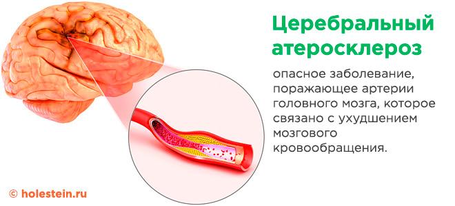 Атеросклероз церебральных сосудов