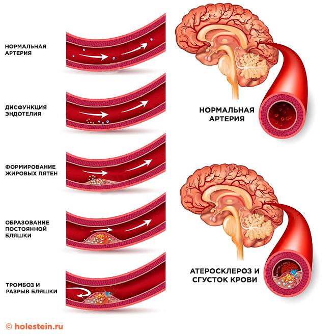 Этапы развития атеросклероза головного мозга