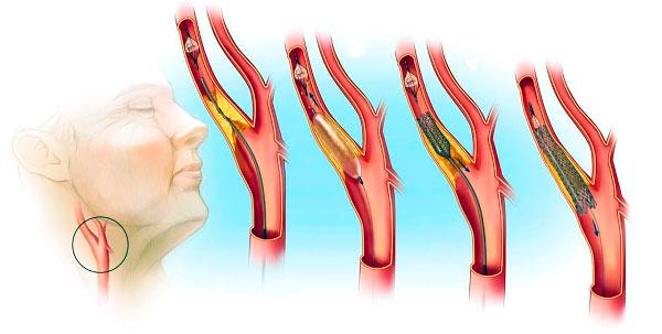 Эиапы развития атеросклероза шеи