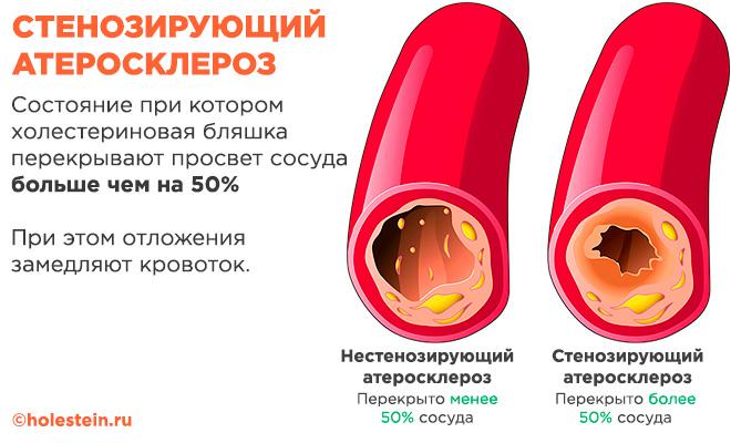 Стенозирующий и нестенозирующий атеросклерозх