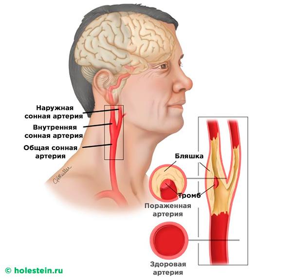 Атеросклероз сосудов сонных артерий