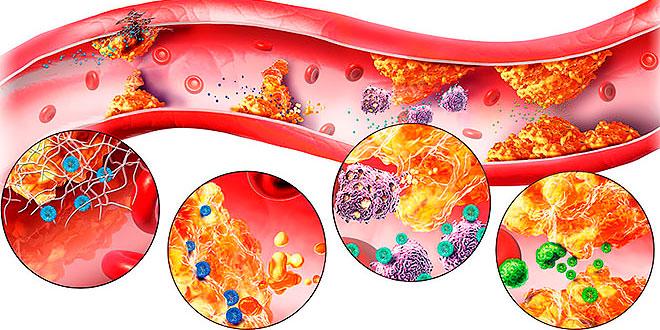 Атеросклероз и сахарный диабет