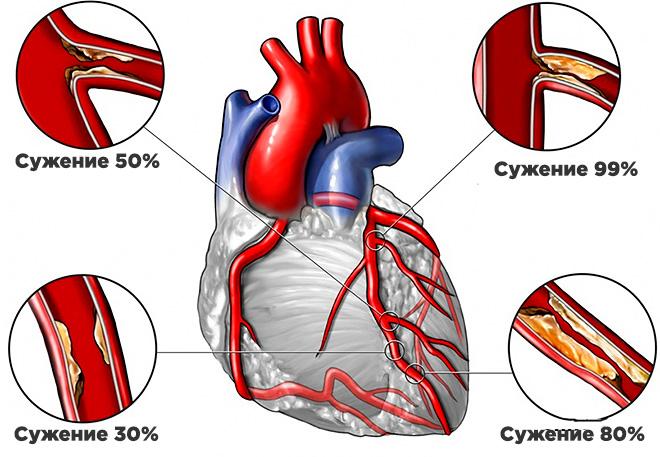 Поражение сосудов сердца атеросклерозом