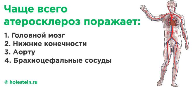 Разновидности атеросклероза