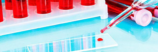 Анализ крови на липиды и железо