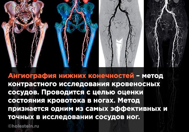 КТ ангиография нижних конечностей