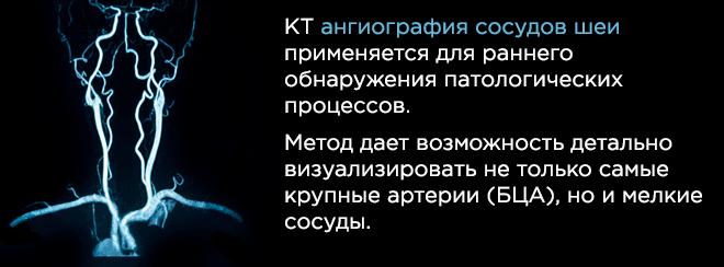 КТ ангиография сосудов шеи