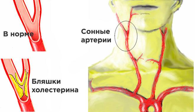 Бляшка в сонной артерии в шейном отделе