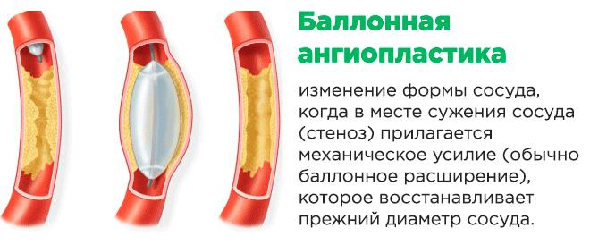 Балонная ангиоплатика сосудов