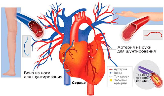 Шунты для сердца из руки и ноги