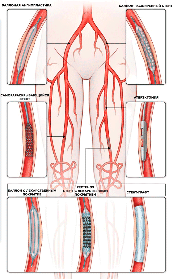Стентирование сосудов на ногах