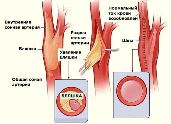 Эндартерэктомия сонной артерии