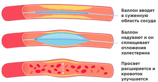 Принцип балонной ангиопластики