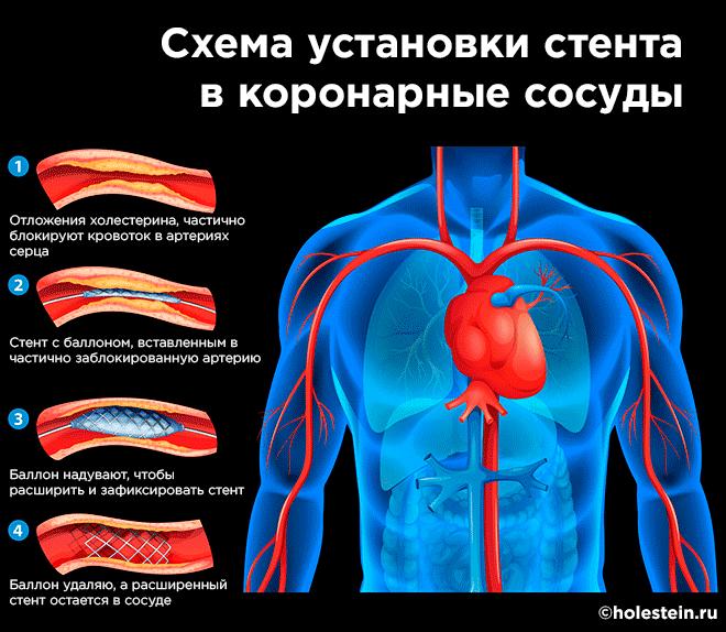 Схема установки стента в сердце