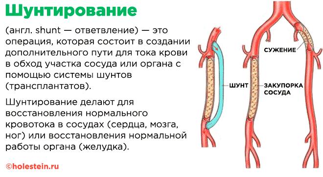 Операция по шунтированию сосудов